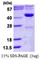 AR50149PU-N - Isocitric dehydrogenase gamma / IDH3G