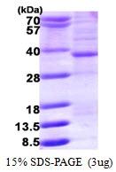 AR50170PU-N - HMG-CoA lyase / HMGCL
