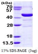 AR50183PU-N - Spermine synthase (SMS)