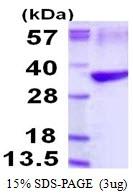 AR50193PU-N - Tropomyosin-3 (TPM3)