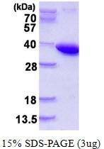 AR50222PU-N - Pyrophosphatase 1 / PPA1