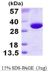 AR50224PU-N - Gamma-glutamyl hydrolase / GGH