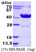 AR50298PU-N - Ornithine carbamoyltransferase