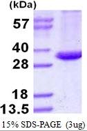 AR50314PU-N - Ag85A (M. tuberculosis) / fbpA