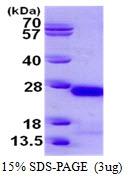 AR50353PU-N - Gamma-crystallin C
