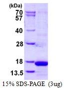 AR50355PU-N - Cystatin-S