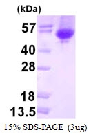 AR50359PU-N - Alpha-galactosidase A / GLA