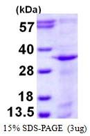 AR50360PU-N - Syntaxin 12 / STX12