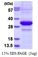 AR50390PU-N - Kallikrein-3 / PSA / KLK3