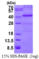 AR50400PU-N - Nucleophosmin