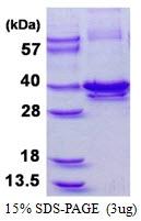 AR50408PU-N - Calponin-1
