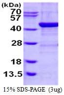 AR50417PU-N - Alcohol dehydrogenase 1C (ADH3)