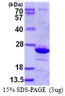AR50456PU-N - Endomucin