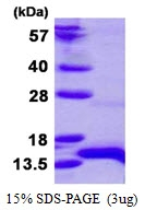 AR50463PU-N - Homeodomain-only protein / HOP