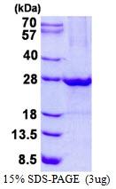 AR50555PU-N - ULBP1 / NKG2D ligand 1