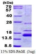 AR50587PU-N - XAGE-1 / G antigen family D member 2