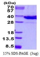 AR50596PU-N - Galectin-8