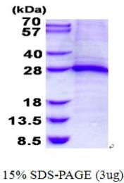 AR50615PU-N - Skeletal muscle Troponin I