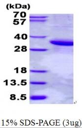 AR50617PU-N - Scramblase 1 / PLSCR1