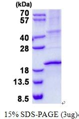 AR50633PU-N - RNASE3