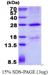 AR50636PU-N - Mannan Binding Protein
