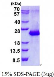 AR50653PU-N - Amelotin