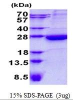AR50676PU-N - Heme-binding protein 1 / HEBP1