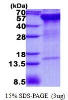 AR50724PU-N - Ribophorin-2 / RPN2