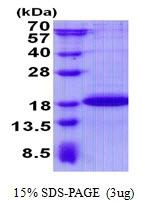 AR50725PU-N - PGL2 / SDHAF2
