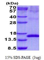 AR50727PU-N - Uroplakin-2 (UPK2)