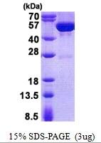 AR50746PU-N - Guanine deaminase