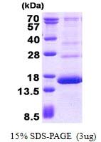 AR50751PU-N - Hemoglobin F / HBG2