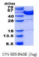AR50757PU-N - Mevalonate kinase