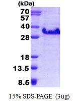 AR50792PU-N - Dysadherin / FXYD5