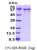AR50838PU-N - SERPING1 / C1 Inhibitor