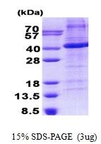 AR50841PU-N - Follistatin