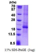 AR50854PU-N - Chorionic Gonadotropin (hCG)