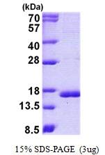 AR50864PU-N - Cystatin-C