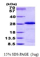 AR50869PU-N - Sperm protein 17 (SP17)