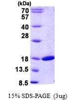 AR50872PU-N - Retinol-binding protein 2 / RBP2
