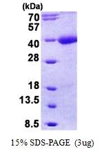 AR50874PU-N - Tomoregulin-1 / TMEFF1