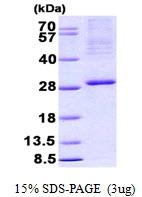 AR50882PU-N - CENP-R / ITGB3BP
