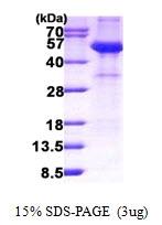 AR50904PU-N - Alpha-2-HS-glycoprotein / AHSG