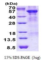 AR50911PU-N - Arylsulfatase A