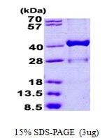 AR50925PU-N - 17-beta-HSD1 / HSD17B1