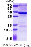 AR50962PU-N - RNASEH2A