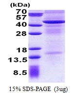 AR50963PU-N - CD213a2 / IL13RA2