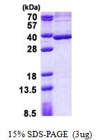 AR50966PU-N - Stanniocalcin 2 / STC2
