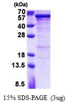 AR50975PU-N - Semenogelin-1 (SEMG1)