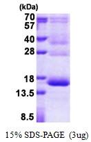 AR50977PU-N - Hemoglobin gamma-1 chain